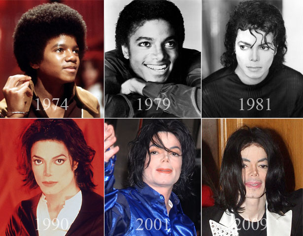 Michael-Jackson-Plastic-Surgery-Before-And-After